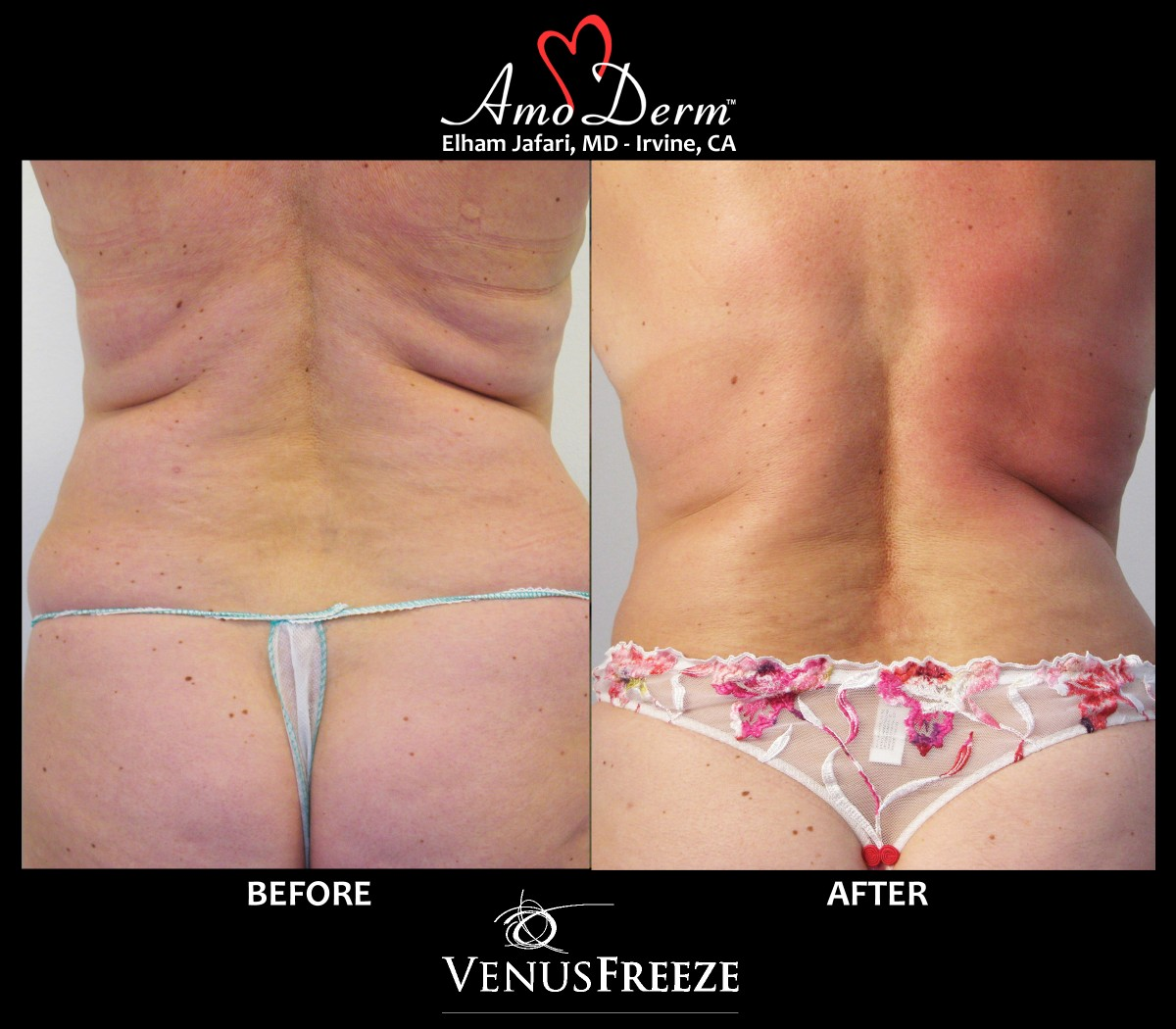 Body contouring and cellulite treatment with Venus Freeze