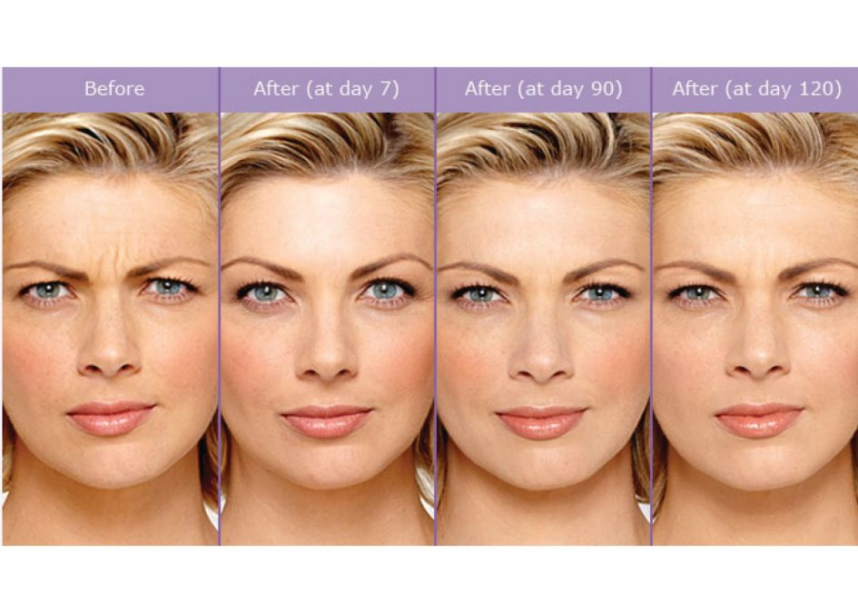 Botox Rejuvenating Effects May Go Beyond Easing Lines and Wrinkles