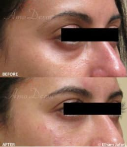 Dark Circles Bags Under Eye Treatment
