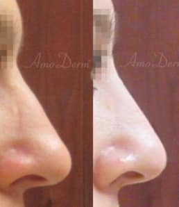 Nonsurgical Nose Job Treatment
