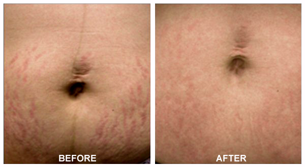 Stretch Mark Removal - Before and After Treatment