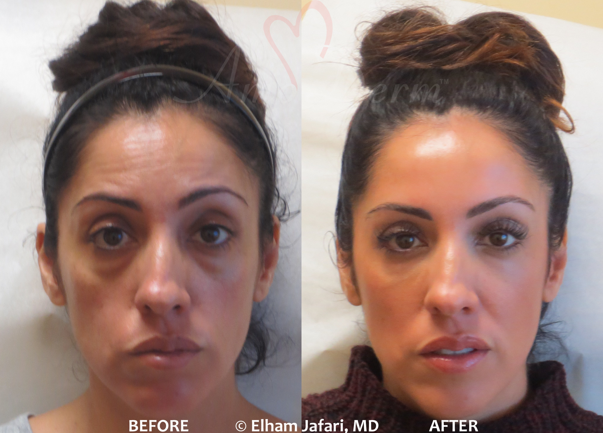 Surgical Facelift or Liquid Facelift with Dermal Fillers - Before and After pictures