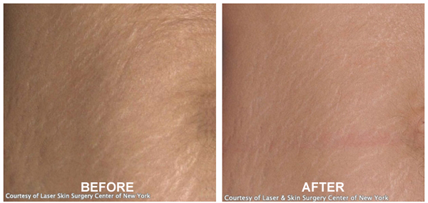 Stretchmark Removal - Before & After Treatment