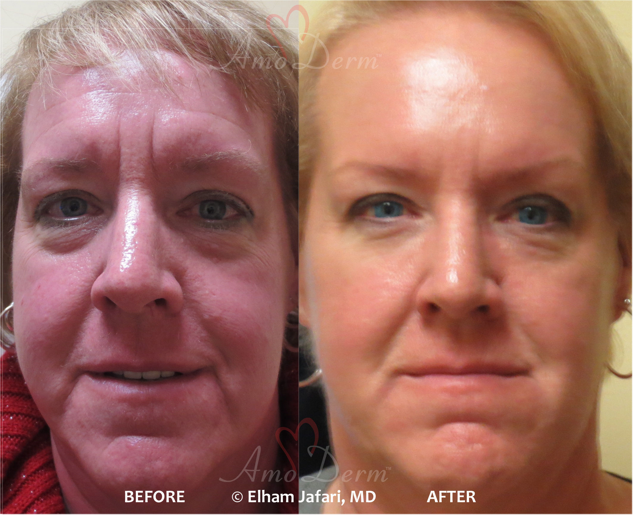 Liquid facelift with fillers and Botox