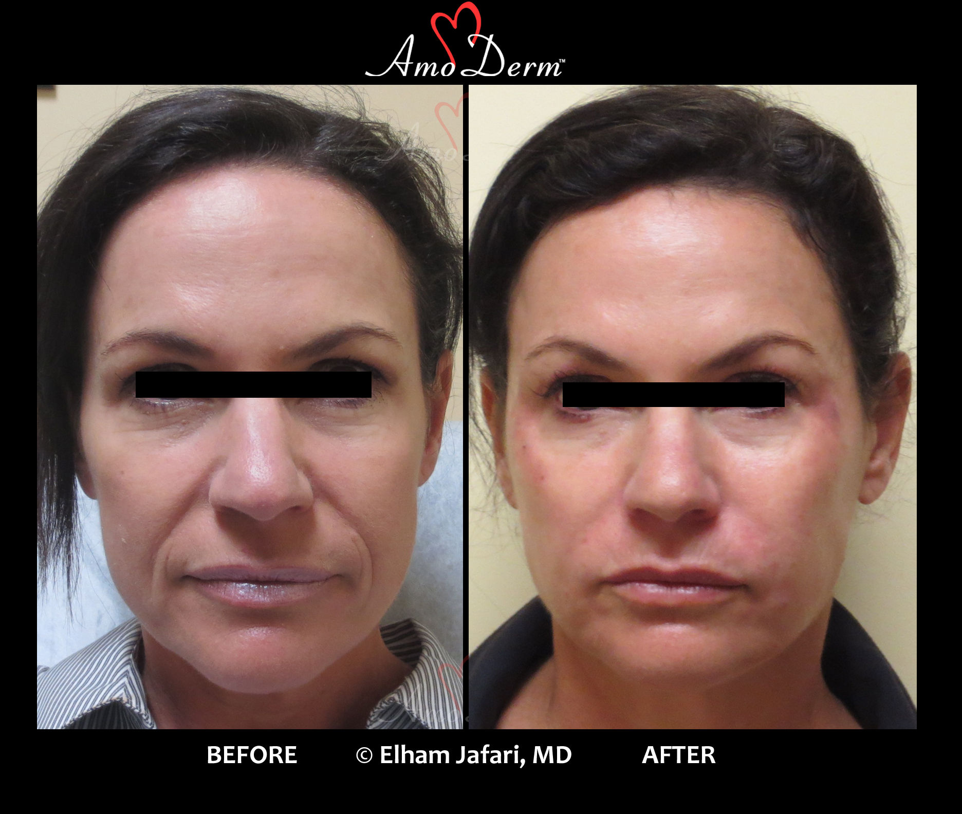 Whole-face rejuvenation (Liquid FaceLift) with dermal filler injection