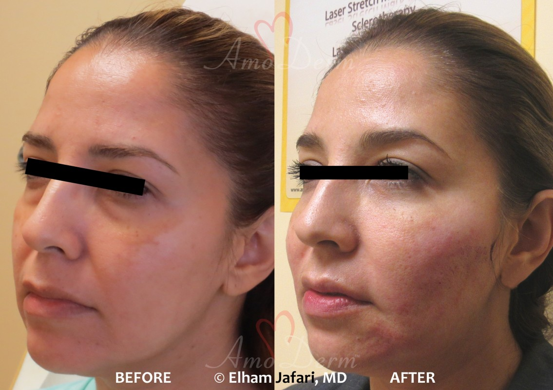 Bellafill dermal fillers injection before and after pictures