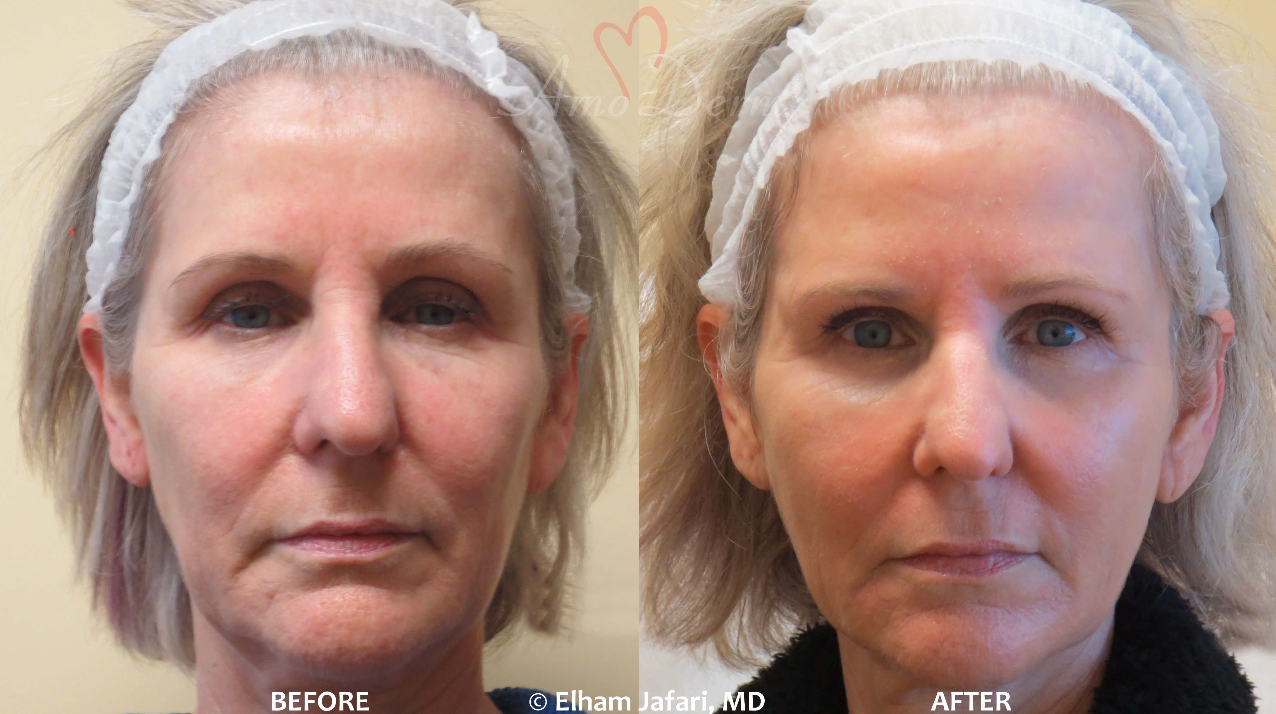 Surgical Facelift or Liquid Facelift - Before and After pictures