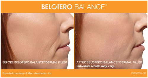 BELOTERO Balance dermal fillers in Orange County