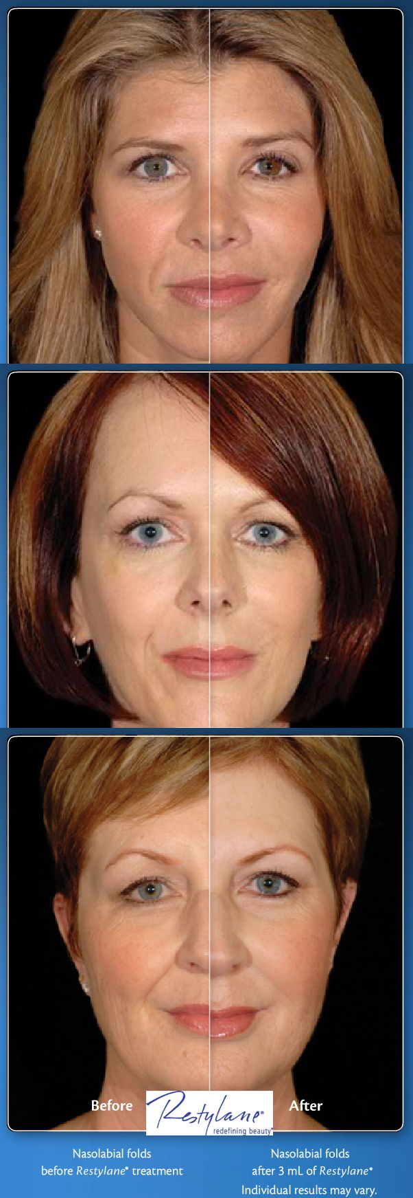 Nasolabial Folds treatment with Restylane - Before and After photos
