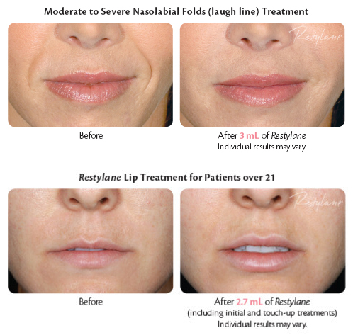 Moderate to Severe Nasolabial Folds (laugh line) treatment with Restylane and Restylane Lip treatment for patients over 21 - Before and After photos