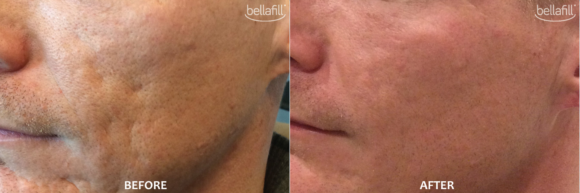 Bellafill Acne Before and After