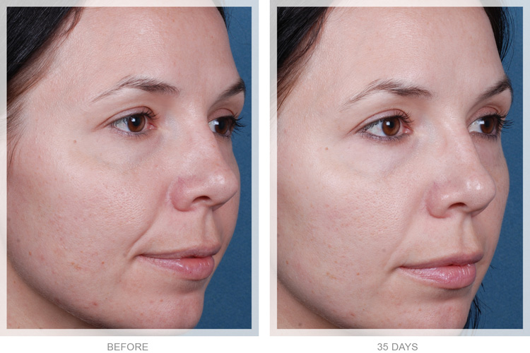 Obagi Blue Peel Radiance Cosmetic Treatment - Before and After pictures