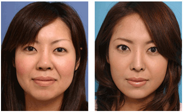 Botox for Facial Slimming