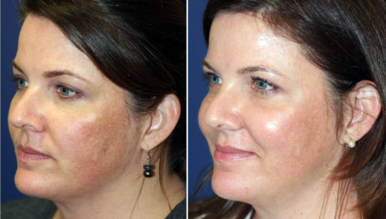 Fractional CO2 laser is used to treat various common skin conditions