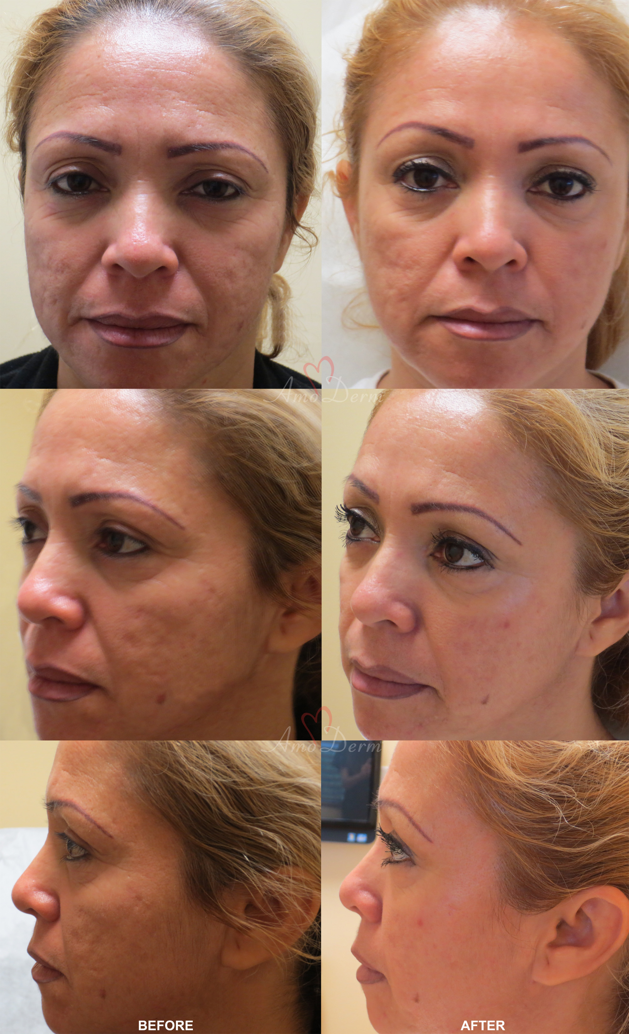 Fractional CO2 Laser Treatment - before and after pictures with real patients