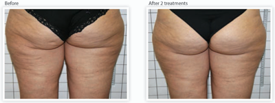 Cellulite Reduction in Orange County, California