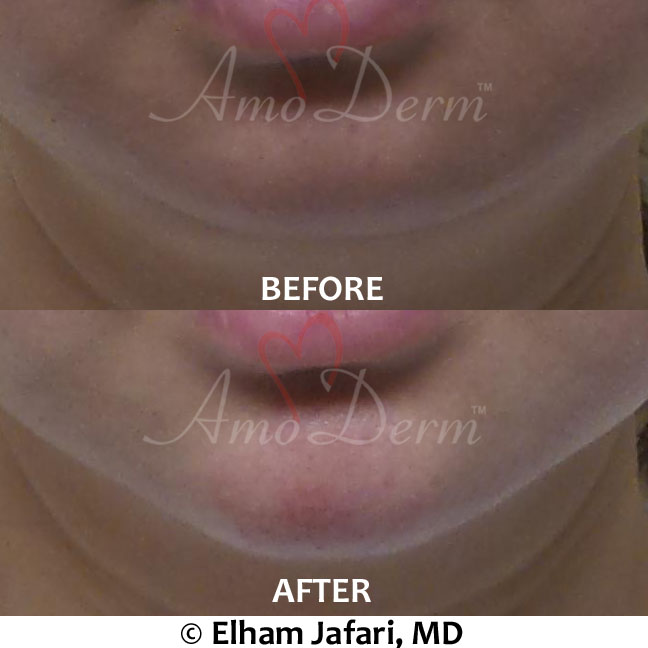 Dermal fillers like bellafill, radiesse or juvederm voluma for chin augmentation treatment real pacients before and after pictures