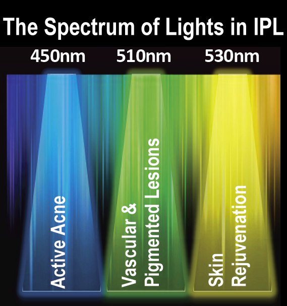 IPL Photofacial Spectrum