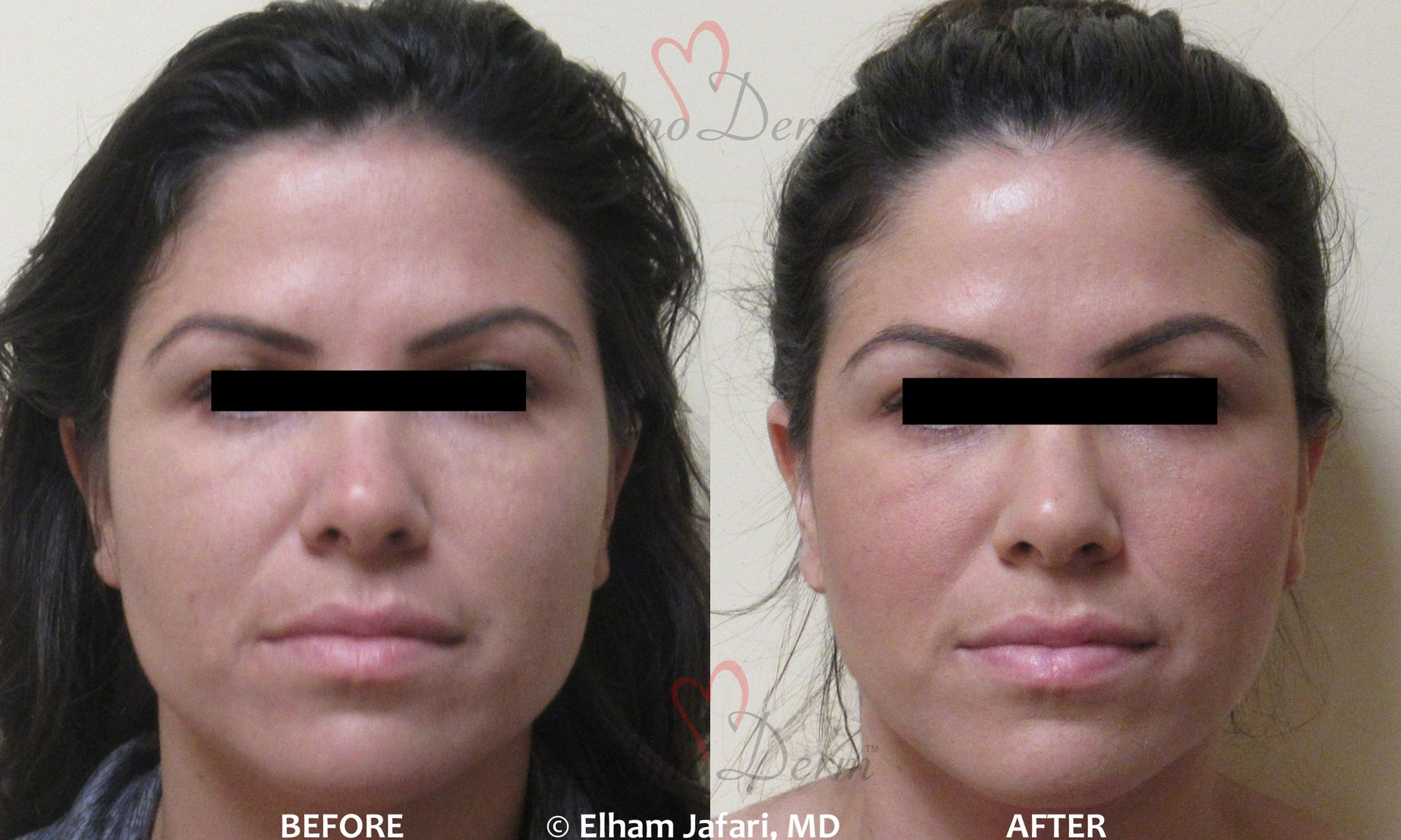 Jaw Slimming Treatment - Before and After picture