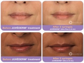 Juvederm treatments in Orange County
