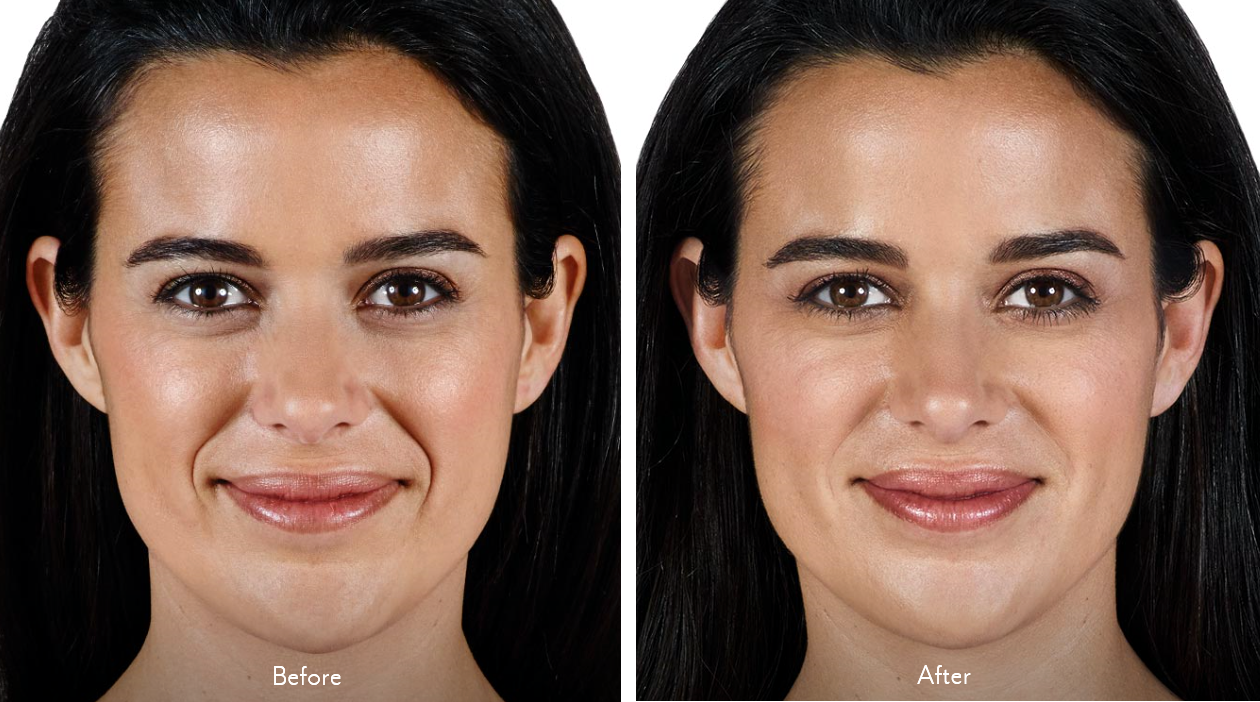 Juvederm Vollure - before and after