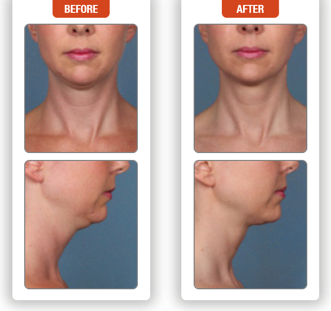 Kybella Injection for under the Chin and upper Neck- Before and After Pictures