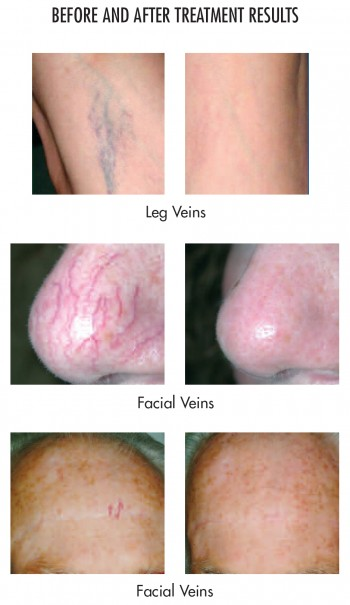 Orange County Laser Vein Removal Treatment - Leg Veins, Facial Veins Before and After pictures