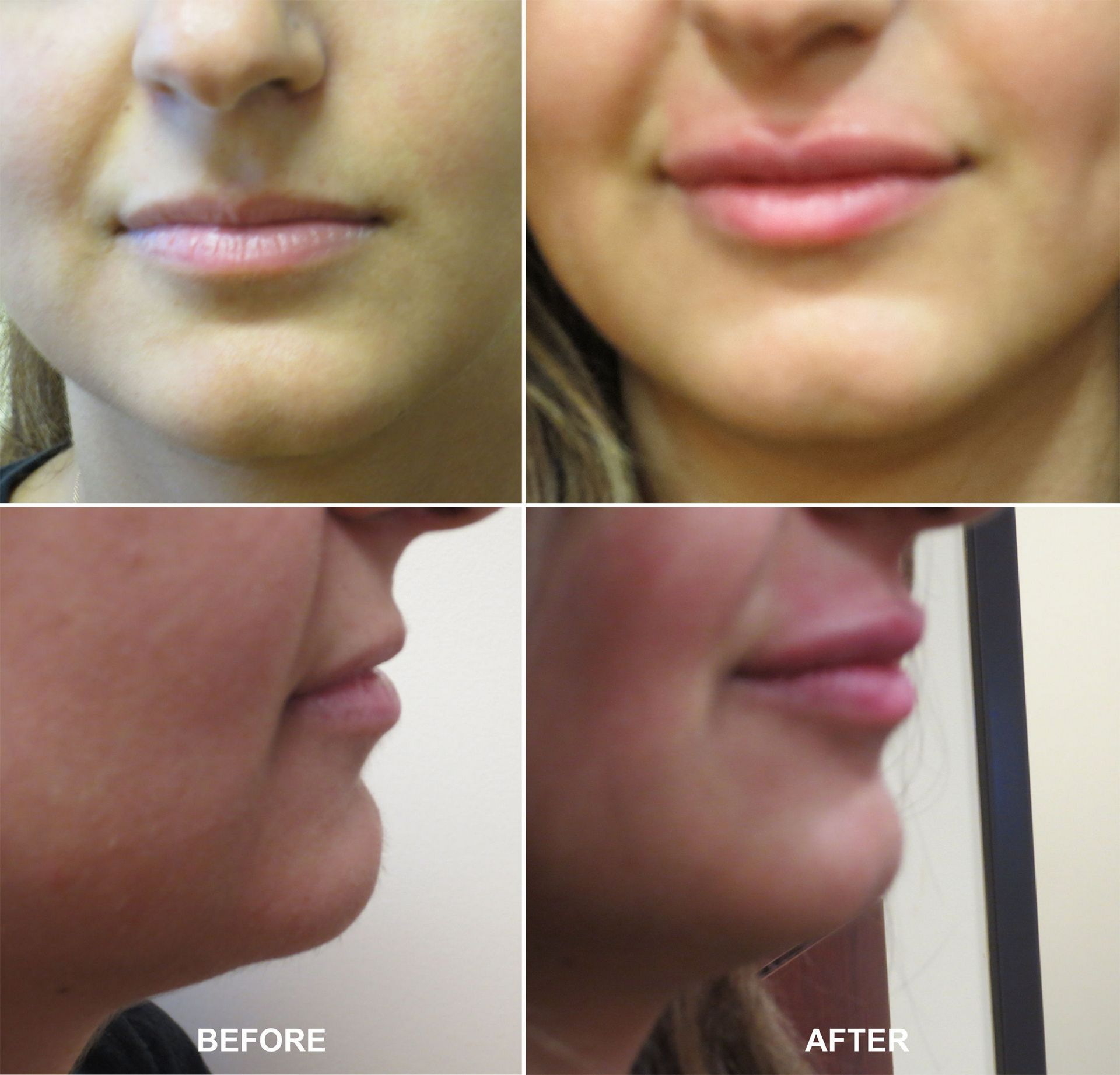 Lip Augmentation - Pictures Before and After Lip Fillers Injection