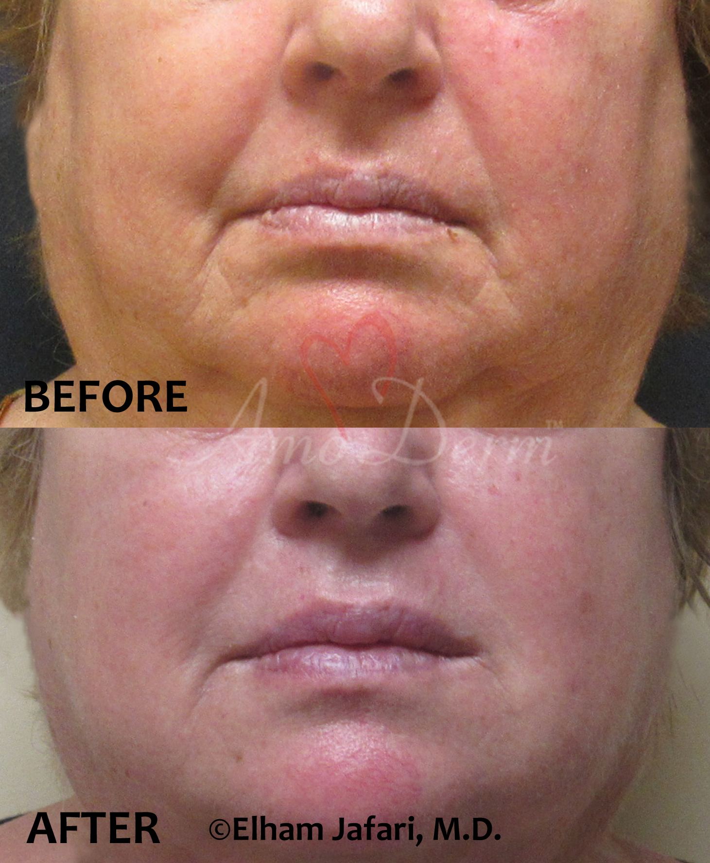 Cosmetic treatment for marionette lines wrinkles with dermal filler by doctor Jafari at Amoderm