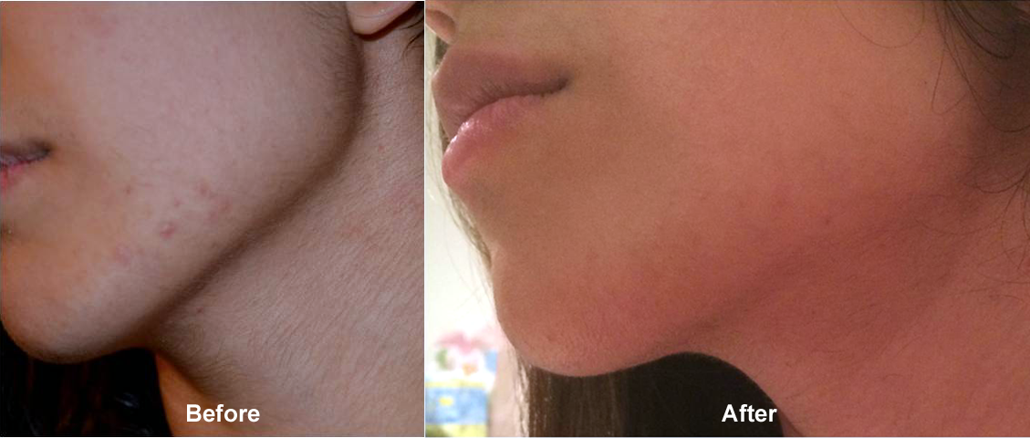 Micro Needling - Before and After Cosmetic Treatments pictures