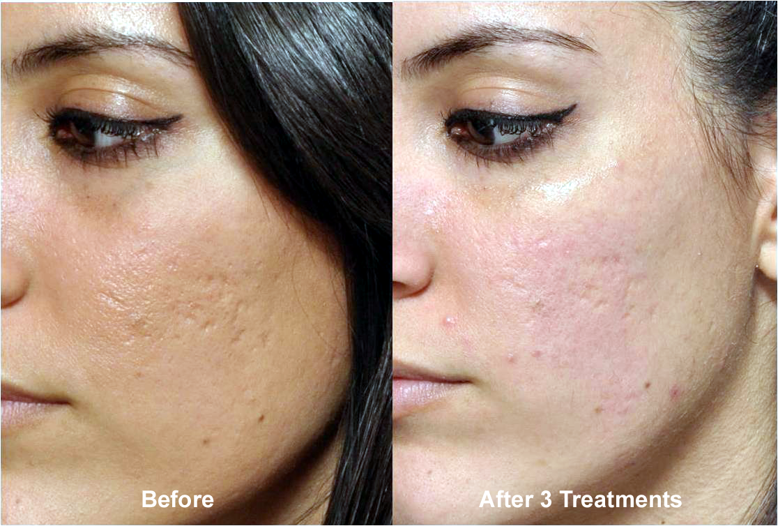 Microneedling Before and After treatment