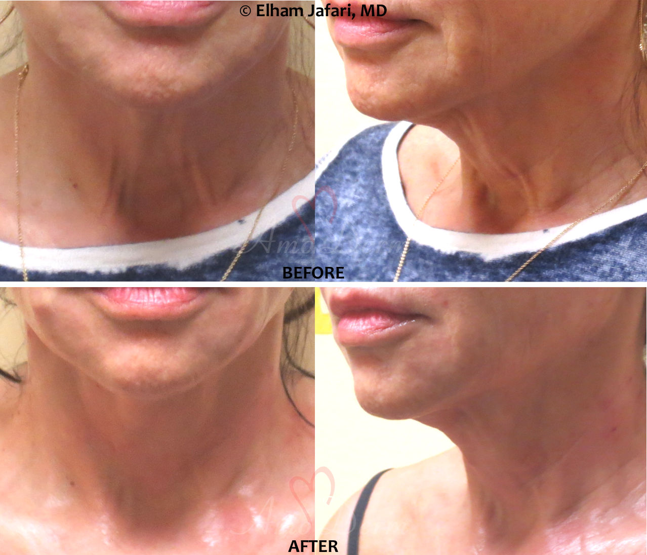 PDO Thread Lift Treatment - Before and After pictures
