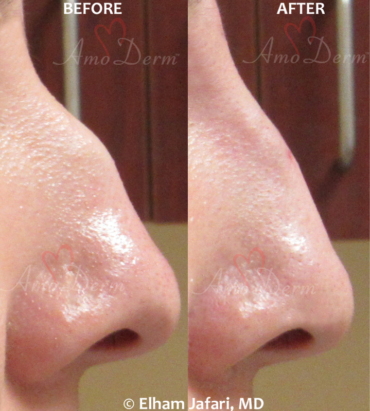 Non-surgical Nose Job Cosmetic Treatments Before and After Pictures