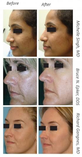Laser Skin Resurfacing - Micro Laser Peel