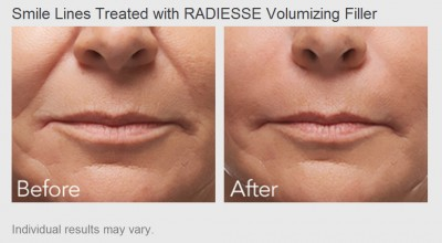 Smile Lines treated with Radiesse Volumizing Filler - Before and After Photos