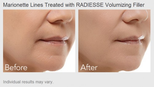 Marionette Lines treated with Radiesse Volumizing Filler - Before and After Photos
