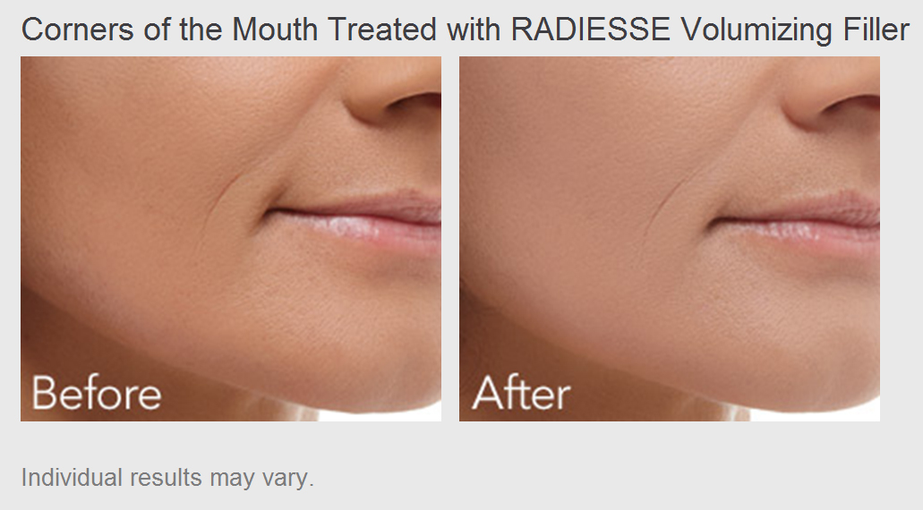 Corners of the Mouth treated with Radiesse Volumizing Filler - Before and After Photos