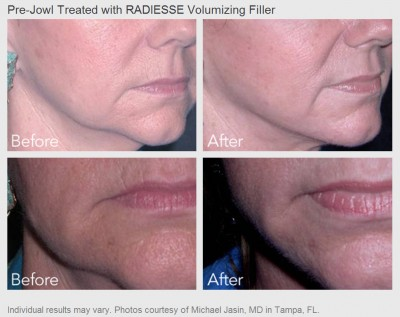 Pre-Jowl treated with Radiesse Volumizing Filler - Before and After Photos