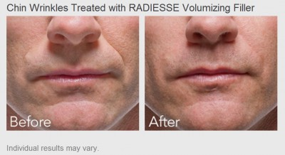 Chin Wrinkles treated with Radiesse Volumizing Filler - Before and After Photos