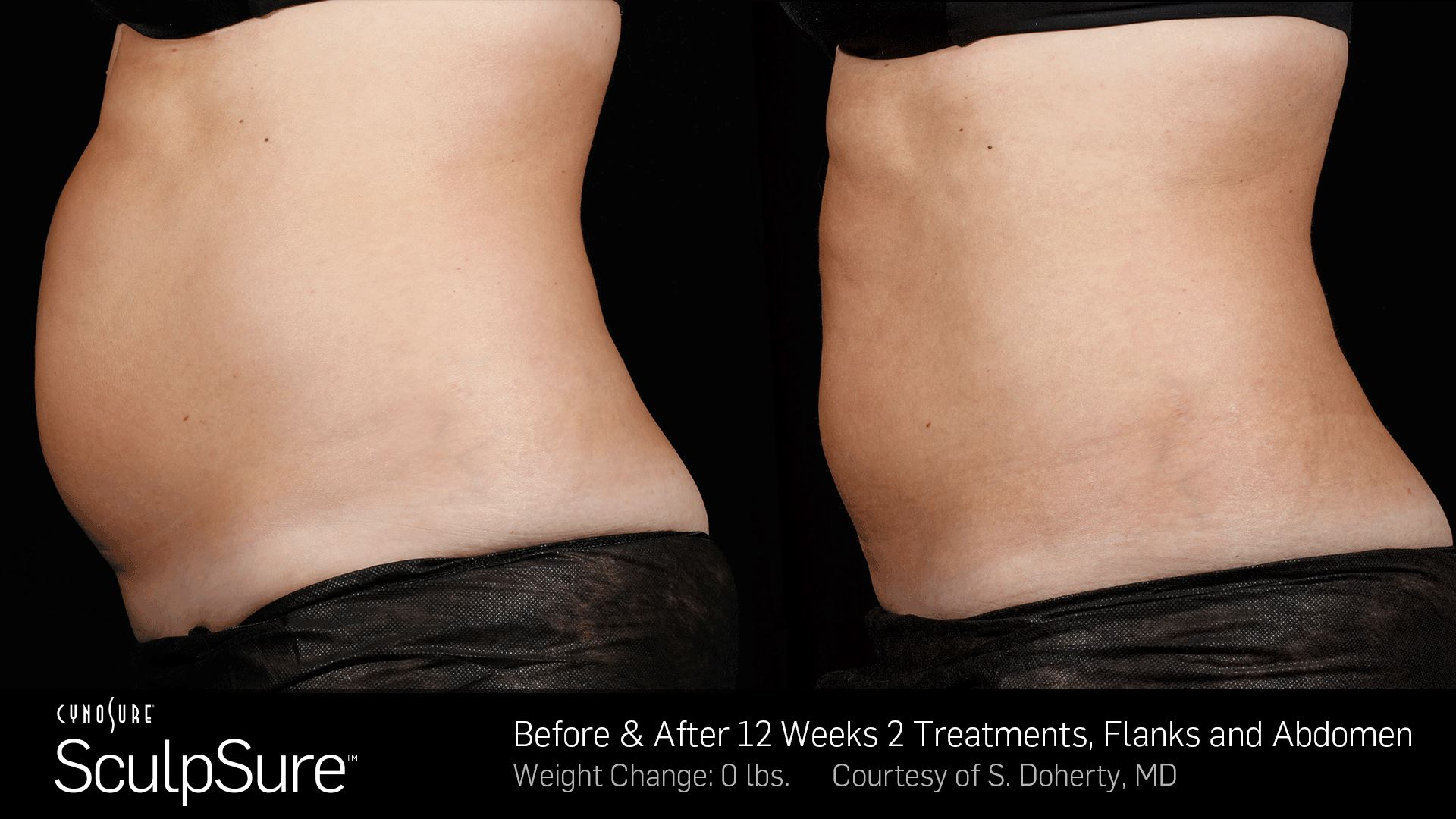 SculpSure - Before and After 12 weeks 2 treatments, Flanks and Abdomen