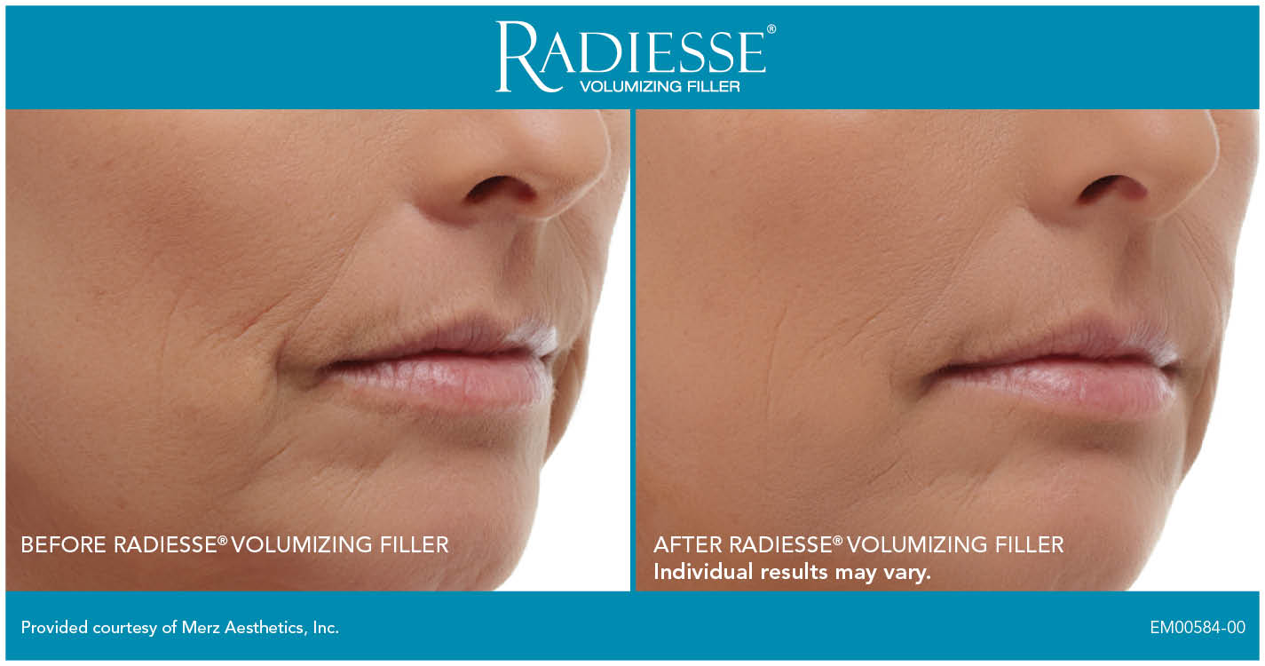 Radiesse Treatment