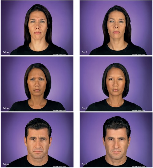 Botox before and after pictures in Orange County