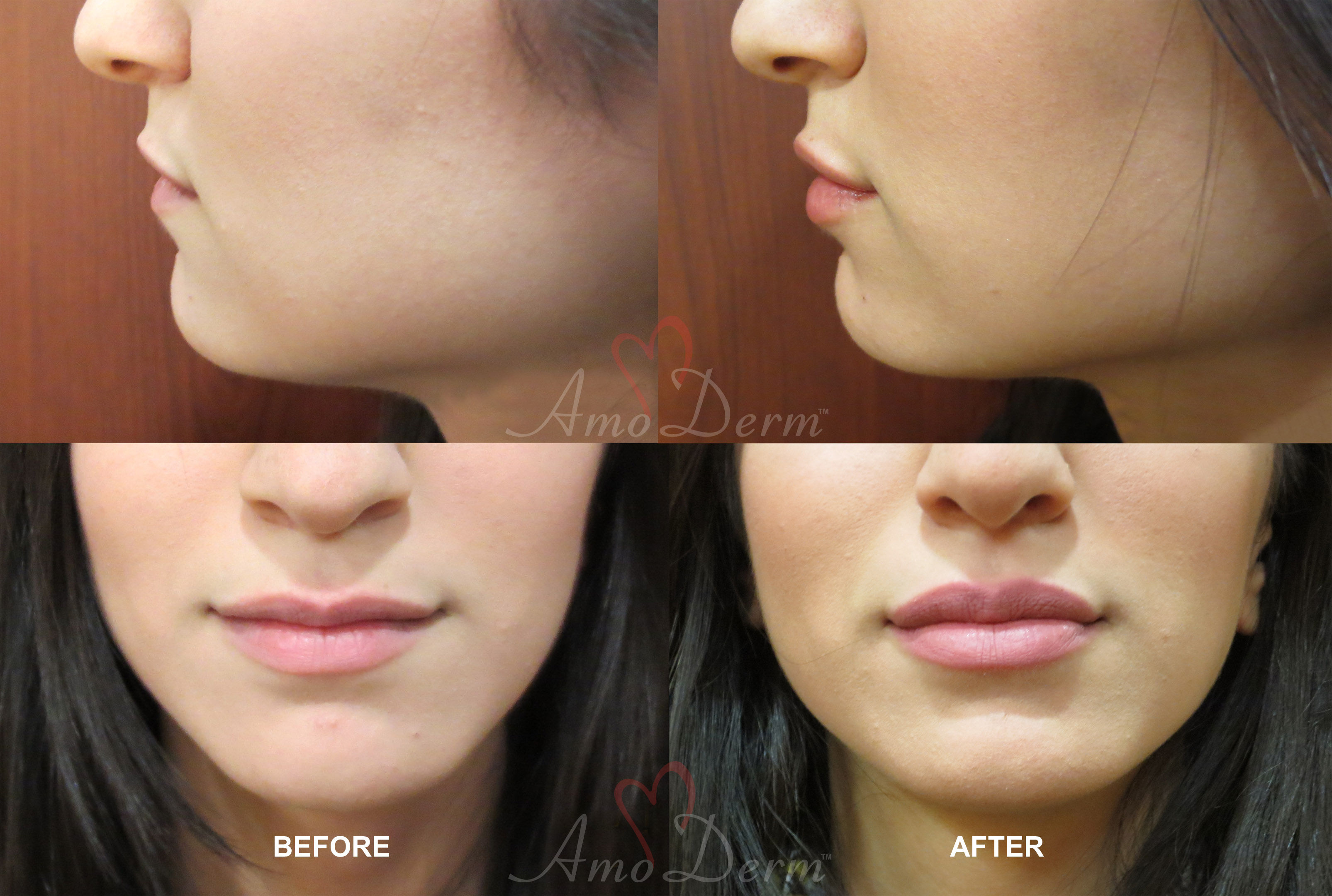 Lip Enhancement with Juvederm Voluma dermal Fillers