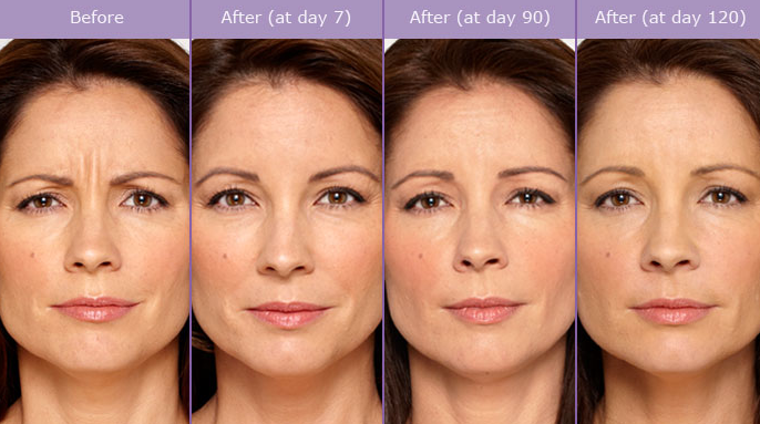Wrinkle reduction with Botox