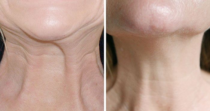 Neck Rejuvenation and Non-surgical Neck Lift