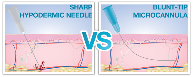 sharp hypodermic needle vs blunt-tip microcannula