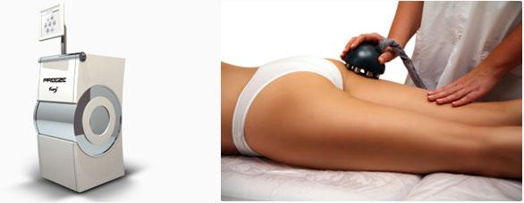 Venus Freeze Irvine Body Contouring Newport Beach Cellulite