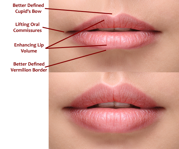 Juvederm Volbella - Fillers for Lip Augmentation in Irvine